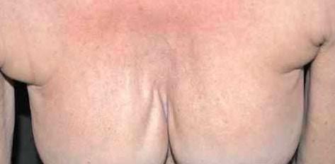 rippling protesi seno