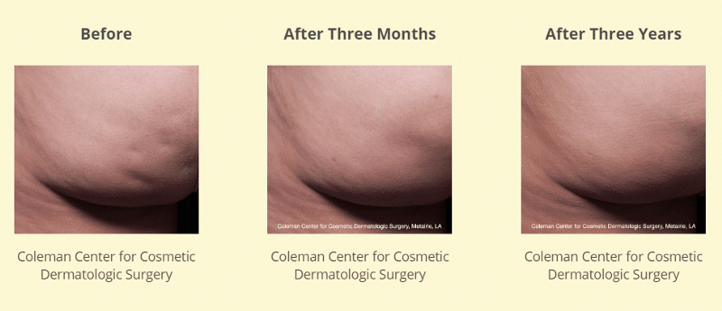 Coleman Center for Cosmetic Surgery