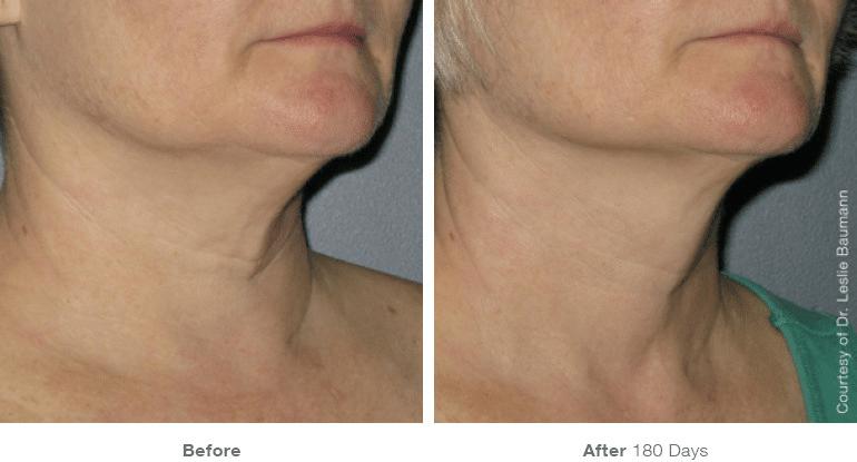 neck 5