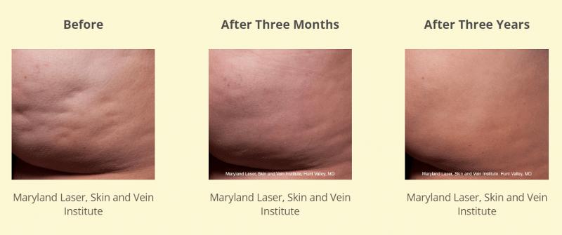 Maryland Laser, Skin and Vein Institute 2