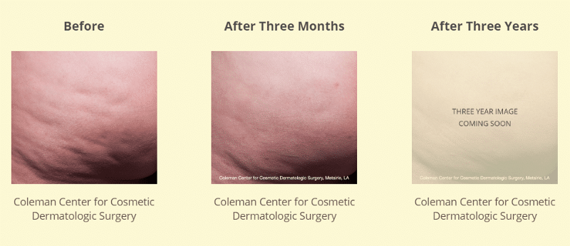 Coleman Center for Cosmetic Surgery 4