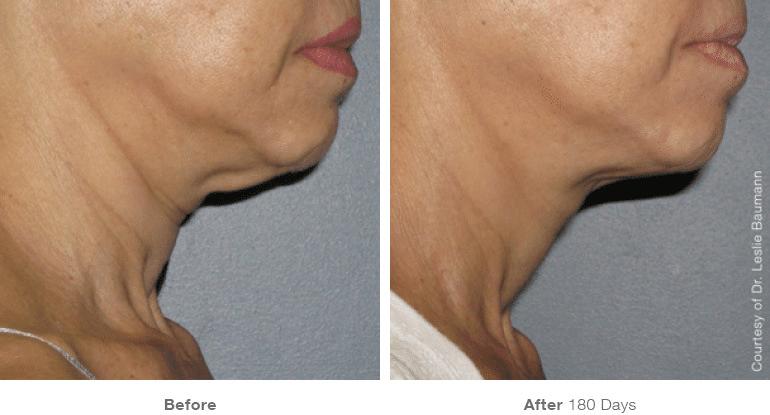 neck 4