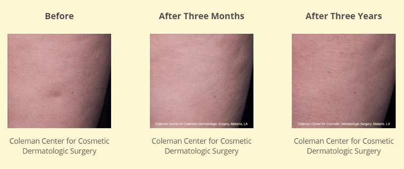 Coleman Center for Cosmetic Surgery 3